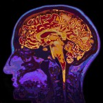 brain-scan-1068-x-580