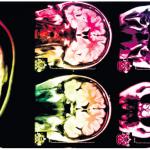 Peperdure hersenstudie ADHD levert niks op
